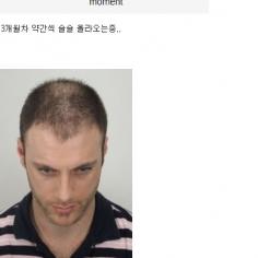 남자의 완성은 머리